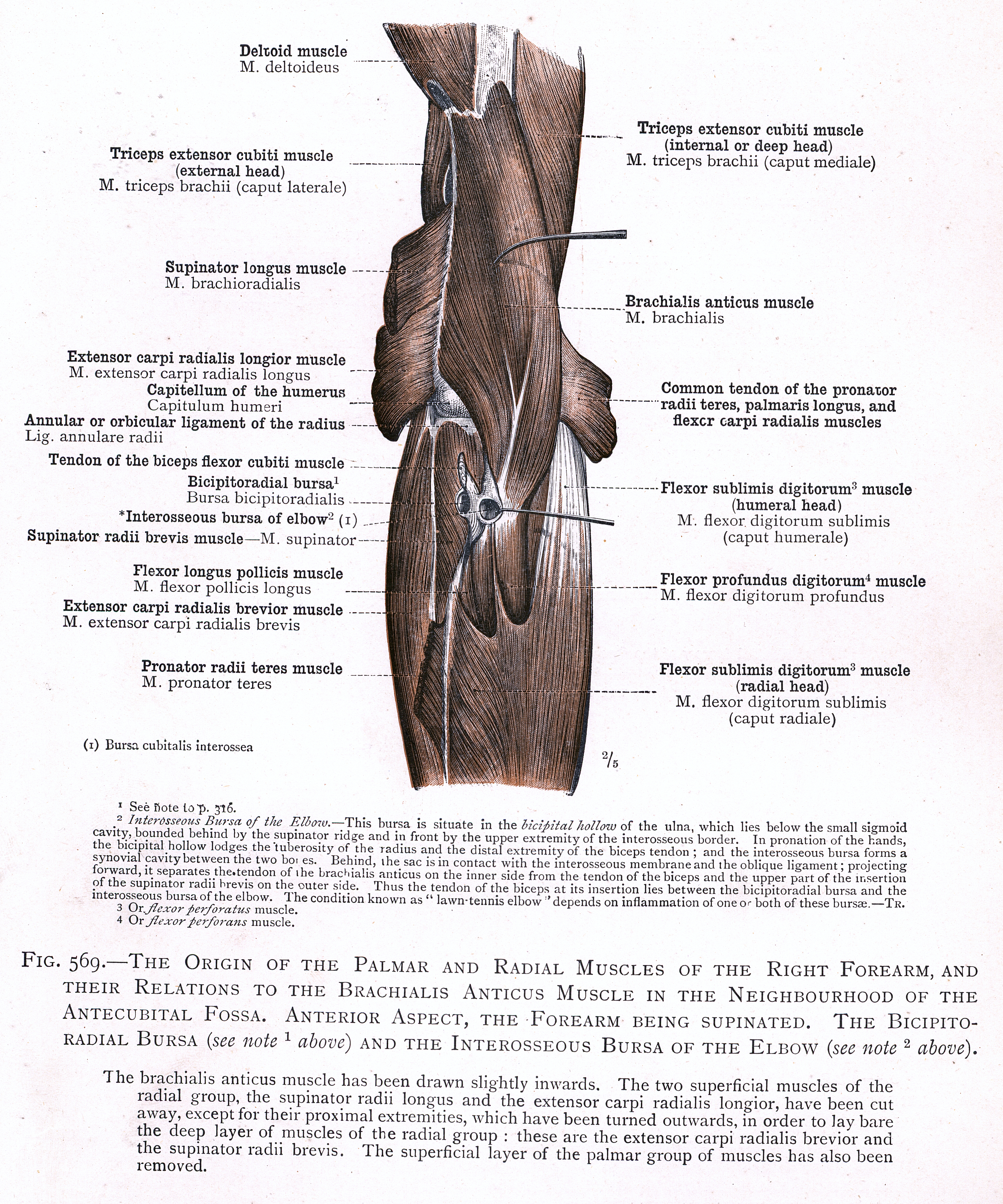 569. The origin of the palmar and radial muscles of the right forearm