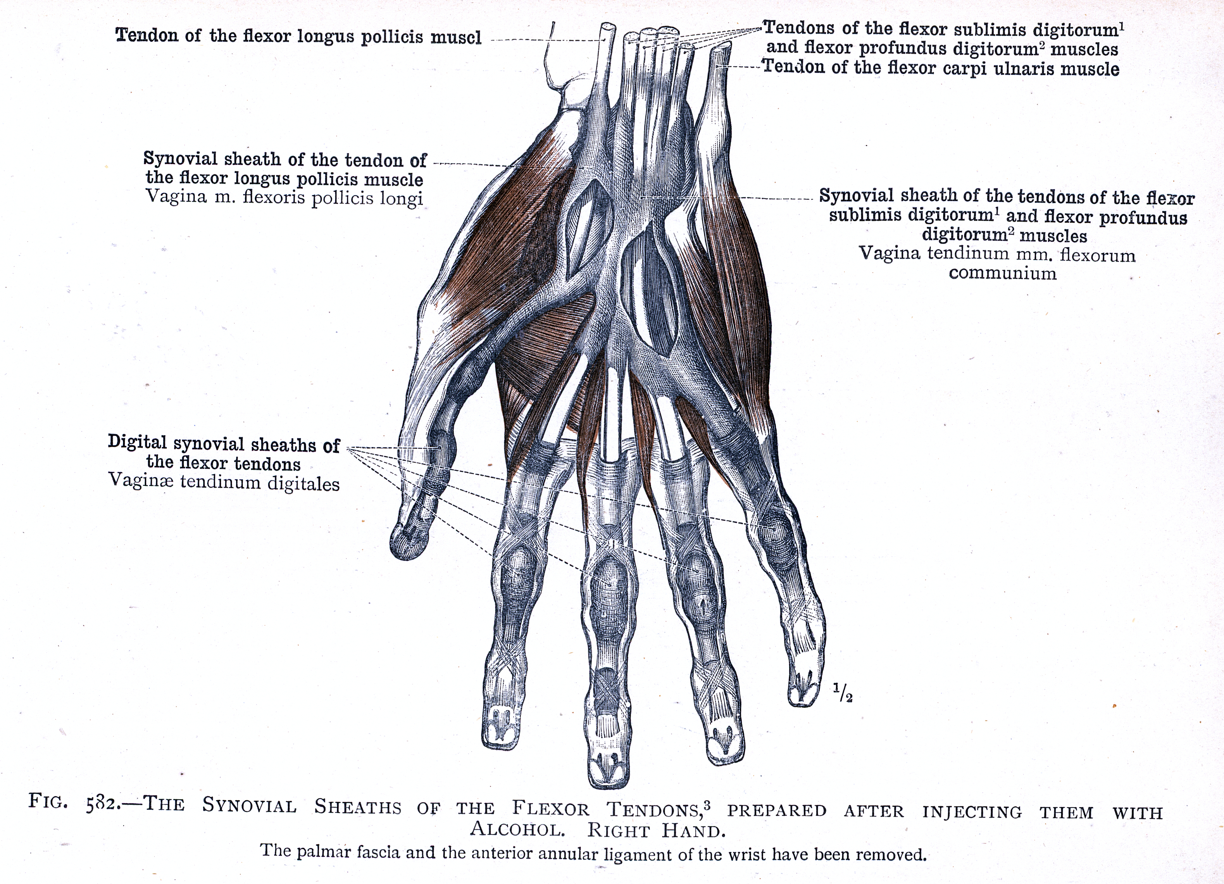 582. The synovial sheaths of the flexor tendons, right hand