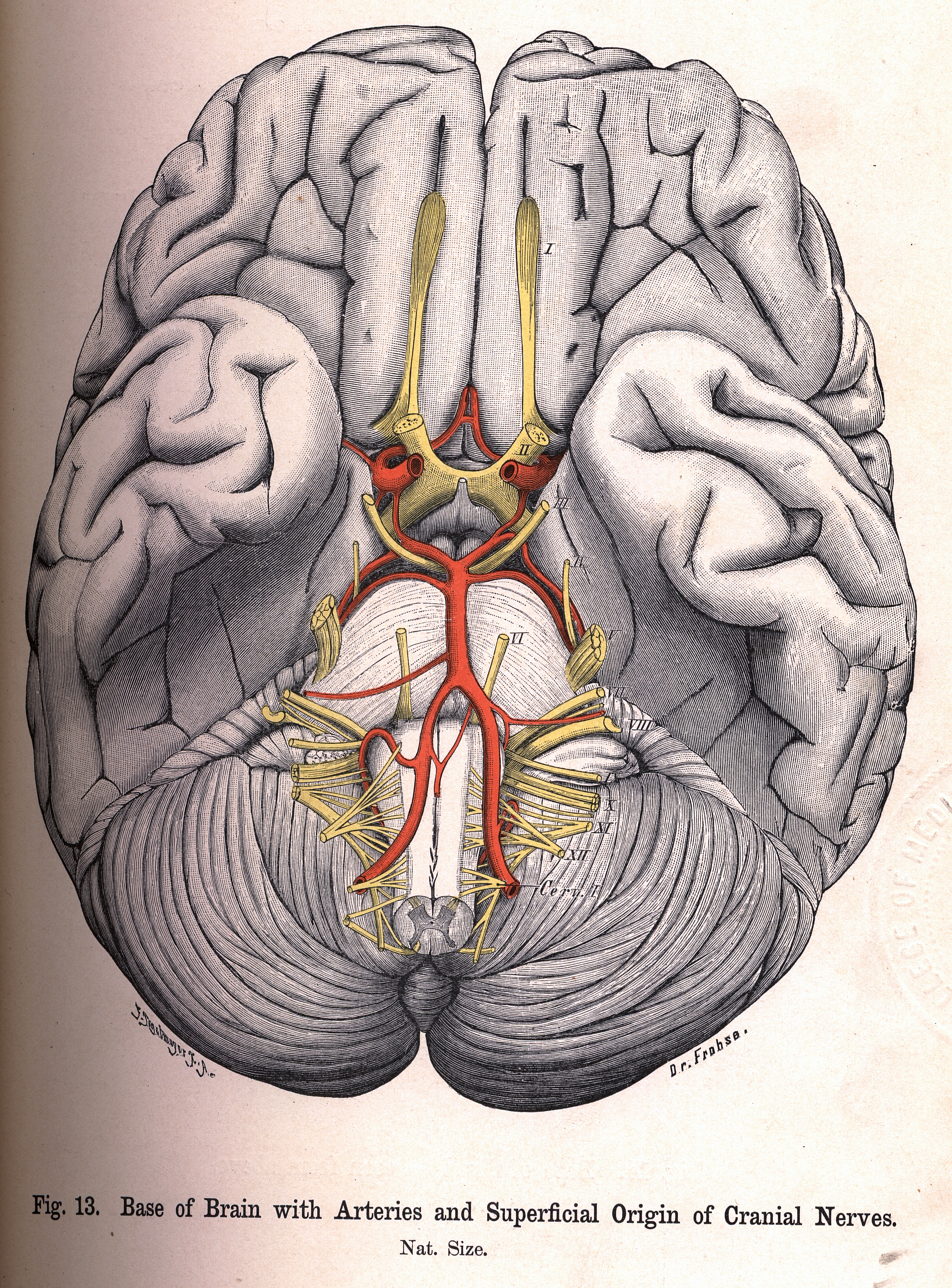 13 Base Of Brain With Arteries And Superficial Origin Of Cranial Nerves