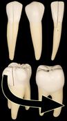molar tooth structure - HD 1544×2795